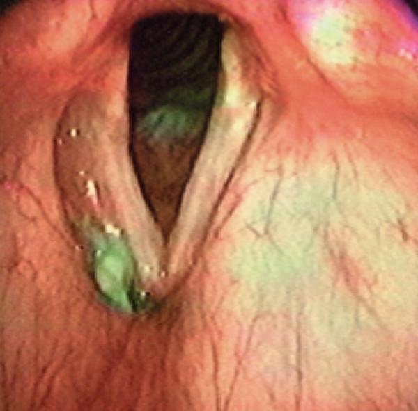Aspiration: Teile des Bolus finden sich in der Trachea, unterhalb der Stimmlippen.